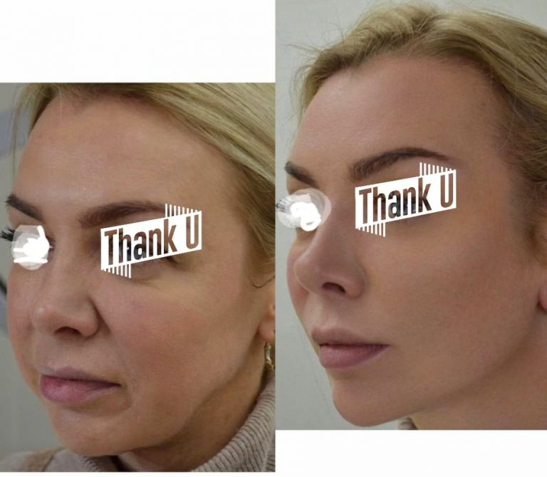 Threadlift before-after
