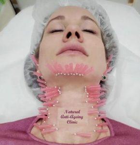 Threadlift neck